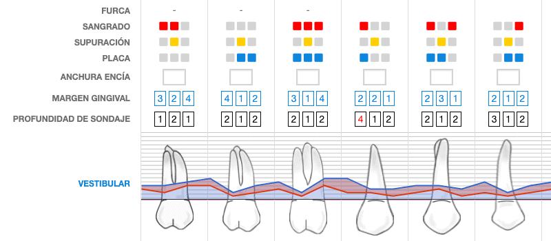 Periodontograma Nubimed