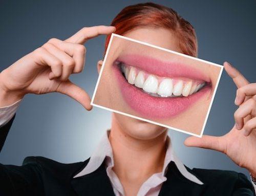 ¿Cómo fidelizar a los pacientes a través del marketing dental?