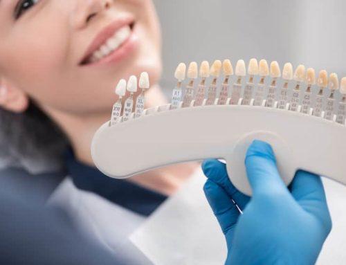¿Por qué apostar al odontograma digital?