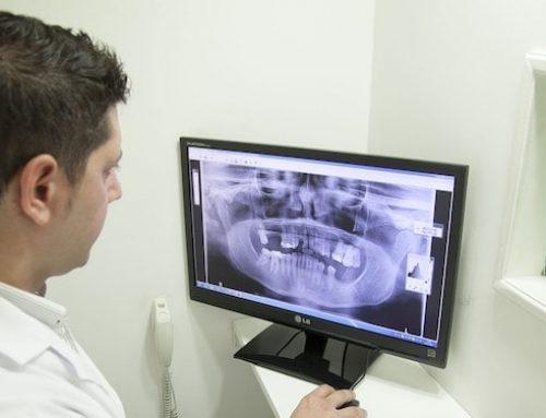 Desafíos y tendencias del software odontológico